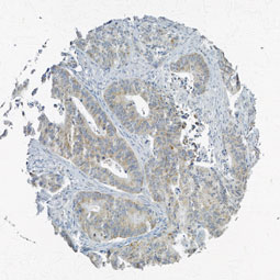 Click to enlarge image Tissue Micro-Array(TMA) core of colon cancer showing cytoplasmic staining using Antibody CPTC-PTPN6-2. Titer: 1:1400