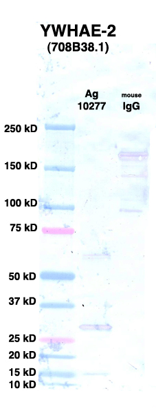 Click to enlarge image Western Blot using CPTC-YWHAE-2 as primary Ab against rYWHAE Ag (NCI-10277) in lane 2. Also included are molecular wt. standards (lane 1) and mouse IgG control (lane 3).