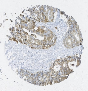 Click to enlarge image Tissue Microarray core of colon cancer immunohistochemically stained with antibody CPTC-EGFR-6.