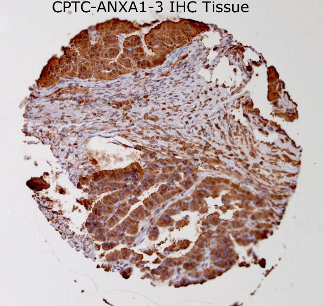 Click to enlarge image Tissue Micro-Array(TMA) core of breast cancer showing cytoplasmic staining using Antibody CPTC-ANXA1-3. Titer: 1:100