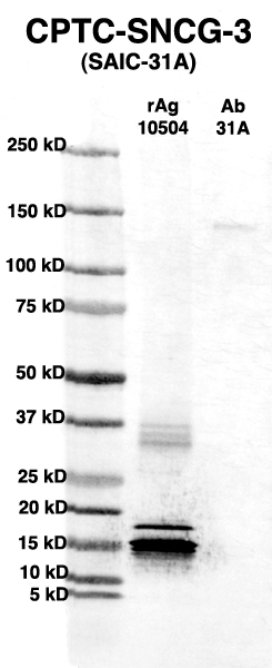 Click to enlarge image Western Blot using CPTC-SNCG-3 as primary Ab against full-length recombinant Ag 10504 (lane 2). Also included are molecular wt. standards (lane 1) and the SNCG-3 Ab as positive control (lane 3).