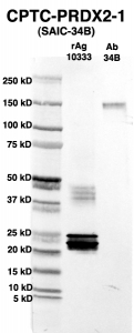 Click to enlarge image Western Blot using CPTC-PRDX2-1 as primary Ab against full-length recombinant Ag 10333 (lane 2). Also included are molecular wt. standards (lane 1) and the PRDX2-1 Ab as positive control (lane 3).