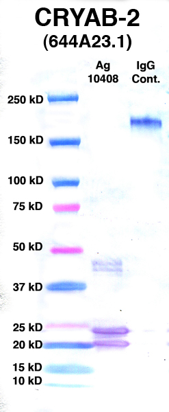 Click to enlarge image Western Blot using CPTC-CRYAB-2 as primary Ab against Ag 10408 (lane 2). Also included are molecular wt. standards (lane 1) and mouse IgG control (lane 3).