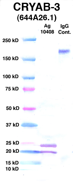 Click to enlarge image Western Blot using CPTC-CRYAB-3 as primary Ab against Ag 10408 (lane 2). Also included are molecular wt. standards (lane 1) and mouse IgG control (lane 3).