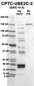 Click to enlarge image Western Blot using CPTC-UBE2C-2 as primary Ab against full-length recombinant Ag 10213 (lane 2). Also included are molecular wt. standards (lane 1) and the UBE2C-2 Ab as positive control (lane 3).