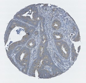Click to enlarge image Tissue Microarray core of colon cancer showing immunohistochemical staining for Antibody CPTC-BRAF-6.