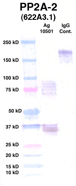 Click to enlarge image Western Blot using CPTC-PP2A-2 as primary Ab against Ag 10501 (lane 2). Also included are molecular wt. standards (lane 1) and mouse IgG control (lane 3).
