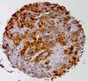 Click to enlarge image Tissue Micro-Array(TMA) core of ovarian cancer showing cytoplasmic staining using Antibody CPTC-S100A4-1. Titer: 1:15000
