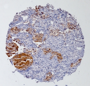 Click to enlarge image Tissue Micro-Array(TMA) core of lung cancer showing cytoplasmic staining using Antibody CPTC-GSTMu1-5. Titer: 1:3000