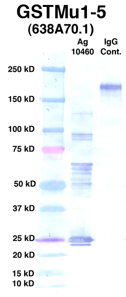 Click to enlarge image Western Blot using CPTC-GSTMu1-5 as primary Ab against Ag 10460 (lane 2). Also included are molecular wt. standards (lane 1) and mouse IgG control (lane 3).