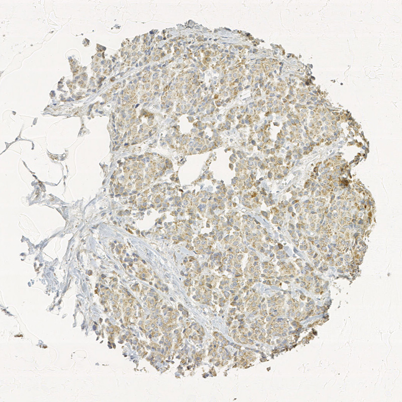 Click to enlarge image Tissue Micro-Array(TMA) core of breast cancer showing cytoplasmic staining using Antibody CPTC-TTR-1. Titer: 1:8000