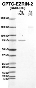 Click to enlarge image Western Blot using CPTC-EZRIN-2 as primary Ab against full-length recombinant Ag 10474 (lane 2). Also included are molecular wt. standards (lane 1) and the EZRIN-2 Ab as positive control (lane 3).