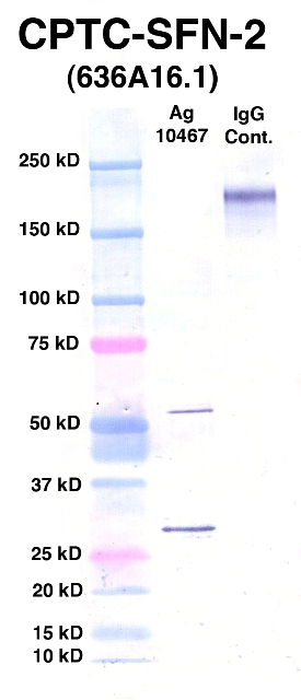 Click to enlarge image Western Blot using CPTC-SFN-2 as primary Ab against Ag 10467 (lane 2). Also included are molecular wt. standards (lane 1) and mouse IgG control (lane 3).