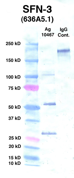 Click to enlarge image Western Blot using CPTC-SFN-3 as primary Ab against Ag 10467 (lane 2). Also included are molecular wt. standards (lane 1) and mouse IgG control (lane 3).