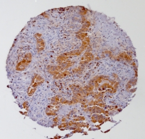 Click to enlarge image Tissue Micro-Array(TMA) core of colon cancer showing cytoplasmic staining using Antibody CPTC-PSAT1-2. Titer: 1:50