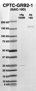 Click to enlarge image Western Blot using CPTC-GRB2-1 as primary Ab against full-length recombinant Ag 10390 (lane 2). Also included are molecular wt. standards (lane 1) and the GRB2-1 Ab as positive control (lane 3).