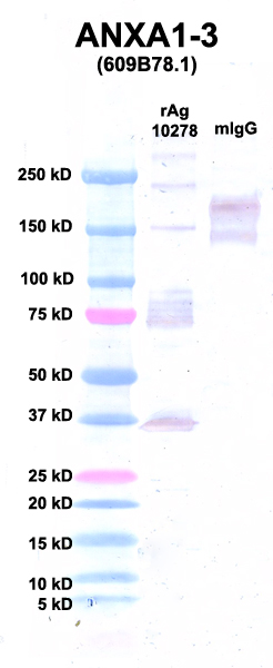 Click to enlarge image Western Blot using CPTC-ANXA1-3 as primary Ab against Ag 10278 (lane 2). Also included are molecular wt. standards (lane 1) and mouse IgG control (lane 3).