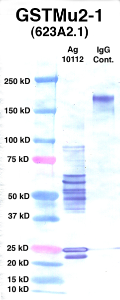 Click to enlarge image Western Blot using CPTC-GSTMu2-1 as primary Ab against Ag 10112 (lane 2). Also included are molecular wt. standards (lane 1) and mouse IgG control (lane 3).