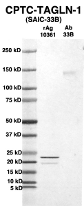 Click to enlarge image Western Blot using CPTC-TAGLN-1 as primary Ab against full-length recombinant Ag 10361 (lane 2). Also included are molecular wt. standards (lane 1) and the TAGLN-1 Ab as positive control (lane 3).