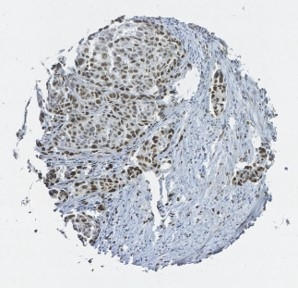 Click to enlarge image Tissue Microarray core of ovarian cancer immunohistochemically stained with antibody CPTC-FOS-4