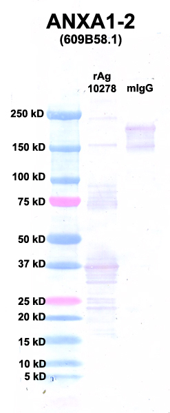 Click to enlarge image Western Blot using CPTC-ANXA1-2 as primary Ab against Ag 10278 (lane 2). Also included are molecular wt. standards (lane 1) and mouse IgG control (lane 3).
