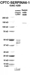 Click to enlarge image Western Blot using CPTC-SERPINA6-1 as primary Ab against HEK293T cell lysate containing SERPINA6 (from Origene) in lane 2. Also included are molecular wt. standards (lane 1) and the SERPINA6-1 Ab as the IgG control (lane 3).