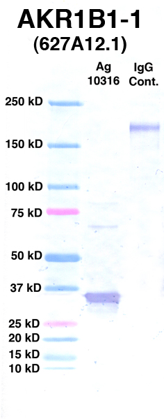 Click to enlarge image Western Blot using CPTC-AKR1B1-1 as primary Ab against Ag 10316 (lane 2). Also included are molecular wt. standards (lane 1) and mouse IgG control (lane 3).