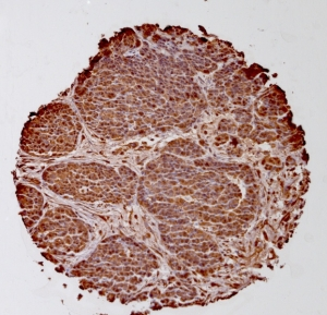 Click to enlarge image Tissue Micro-Array(TMA) core of ovarian cancer showing cytoplasmic staining using Antibody CPTC-ODC1-2. Titer: 1:100