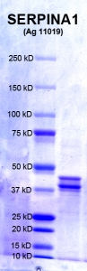 Click to enlarge image PAGE of Ag 11019 (with molecular weight standards in lane 1)