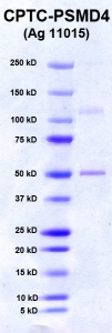 Click to enlarge image PAGE of PSMD4 (Ag 11015) with molecular weight standards in lane 1